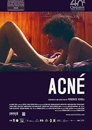 Acne 2008 with English Subtitles 2